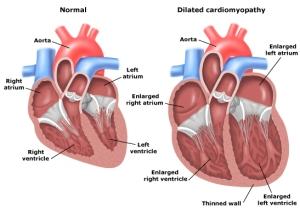 Dilated-Cardiomyopathy