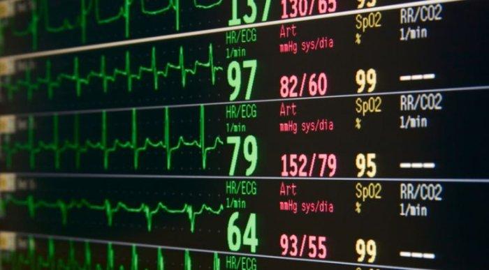Alarm Fatigue – Recent Research About Nursing – Robert Wood JohnsonFoundation